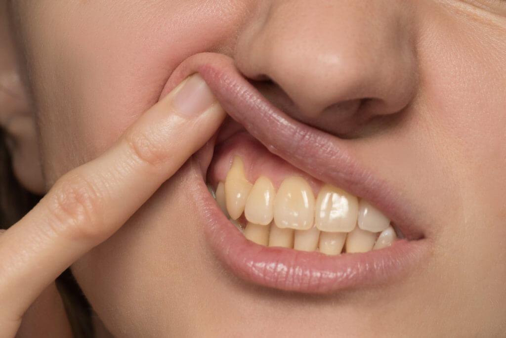 Zahnverfärbungen Warum sich Zähne gelblich verfärben