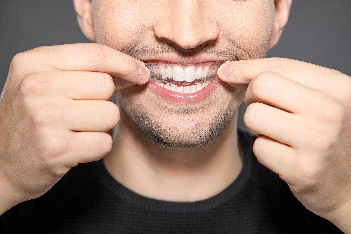 Mit diesen 4 Kriterien findest Du die besten White Strips für Deine Zähne