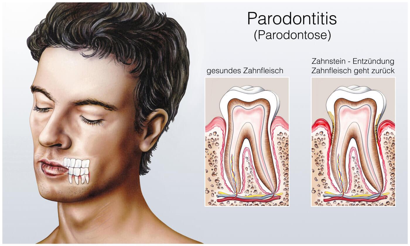 Parodontitis Form - Illustration Erklaerung