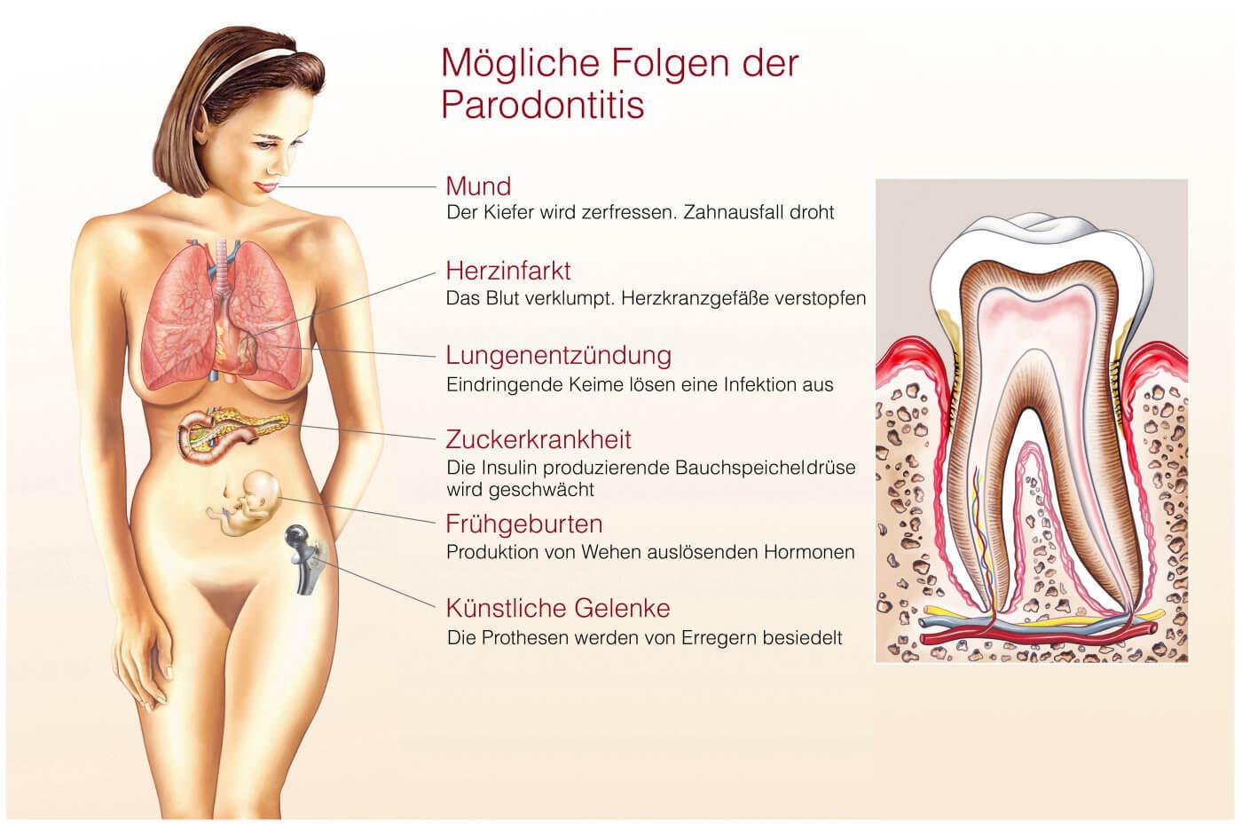 Parodontitis als Risikofaktor für andere Entzündungen - Illustration mögliche Erkrankungen