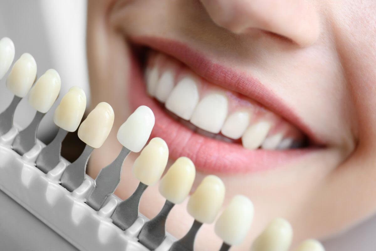 Welche Zahnaufhellungsmethode ist die beste