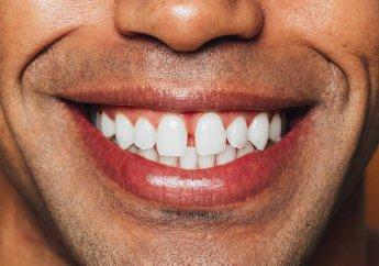 Die Besten Zahnbleaching Sets Mann lacht Eingangsfoto 30